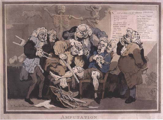 Amputation. Etching. Thomas Rowlandson, 1785. Courtesy of the Countway Library of Medicine, Harvard University.